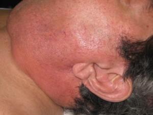 Absceso profundo de cuello