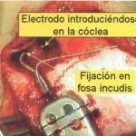Cirugía de Implante Coclear