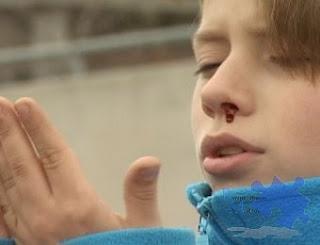 Epistaxis (sangrado nasal)