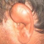 Hematoma Auricular