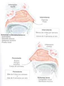 Diferentes Tipos de Rinitis