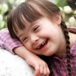 Anomalías de oído en niños con Síndrome de Down